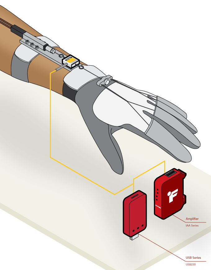Robotic Glove Rehabilitation